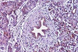 Un tratamiento en investigación consigue erradicar las células de cáncer de páncreas